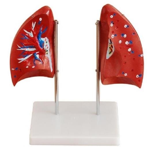 Pulmones en 4 partes Tamaño Real